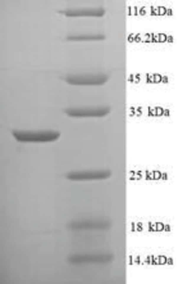 enQuireBio™Recombinant M. tuberculosis INHA Protein 10μg enQuireBio™Recombinant M. tuberculosis INHA Protein