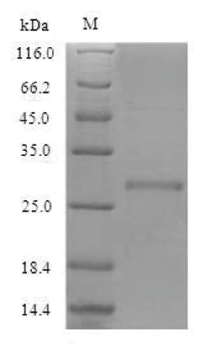 enQuireBio™Recombinant E. coli Large-conductance mechanosensitive channel Protein 10μg enQuireBio™Recombinant E. coli Large-conductance mechanosensitive channel Protein