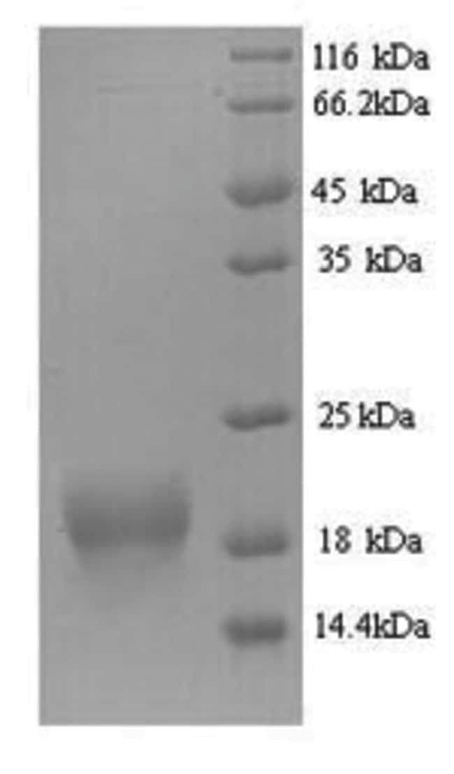 enQuireBio™Recombinant Mouse Fragile histidine triad / FHIT Protein 1mg enQuireBio™Recombinant Mouse Fragile histidine triad / FHIT Protein
