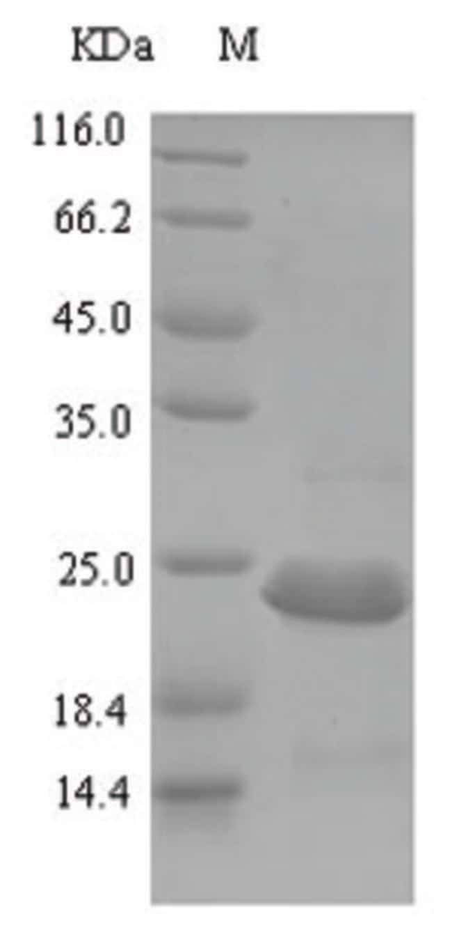 enQuireBio™ Recombinant E. coli Carbon storage regulator Protein 50μg enQuireBio™ Recombinant E. coli Carbon storage regulator Protein