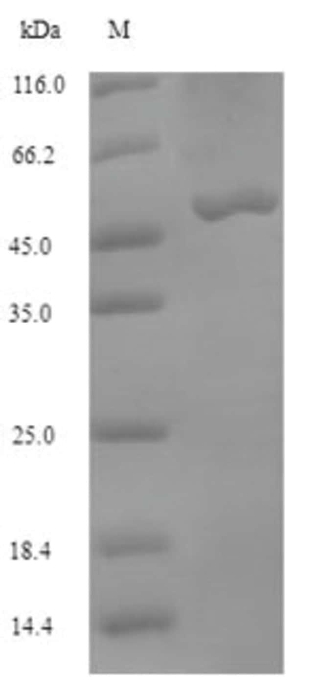 enQuireBio™Recombinant Bovine MTHFD2 Protein 500μg enQuireBio™Recombinant Bovine MTHFD2 Protein
