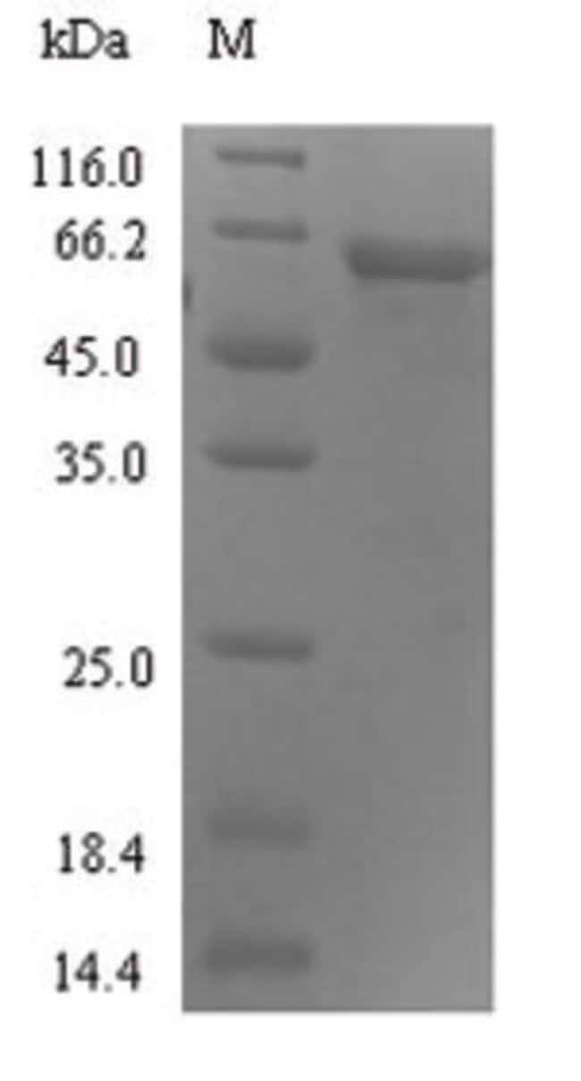 enQuireBio™Recombinant Human Protein ABHD18 Protein 100μg enQuireBio™Recombinant Human Protein ABHD18 Protein