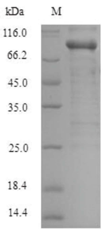 enQuireBio™Recombinant Human Serine / threonine-protein kinase PAK 1 Protein 1mg enQuireBio™Recombinant Human Serine / threonine-protein kinase PAK 1 Protein