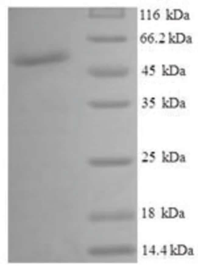 enQuireBio™Recombinant Human UDP-glucose 4-epimerase Protein 500μg enQuireBio™Recombinant Human UDP-glucose 4-epimerase Protein
