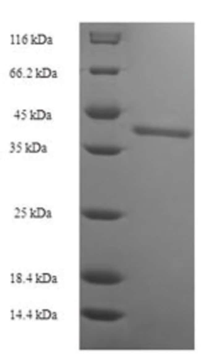 enQuireBio™Recombinant Human Protein SSX2 Protein 200μg enQuireBio™Recombinant Human Protein SSX2 Protein