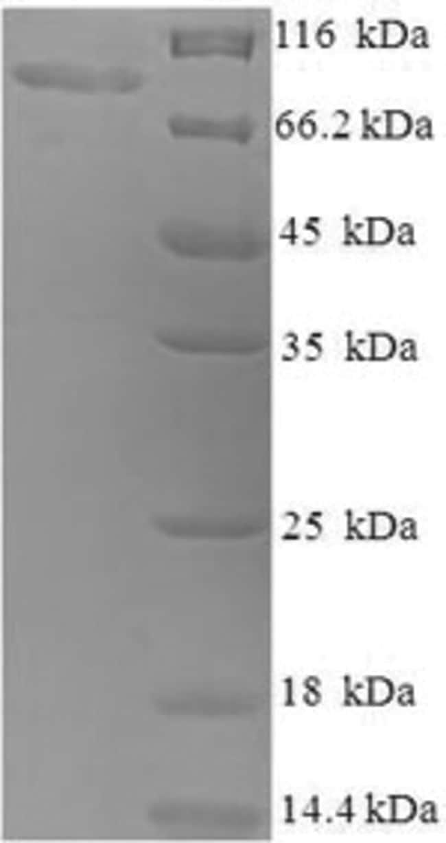 enQuireBio™Recombinant Human Caprin-1 Protein 500μg enQuireBio™Recombinant Human Caprin-1 Protein