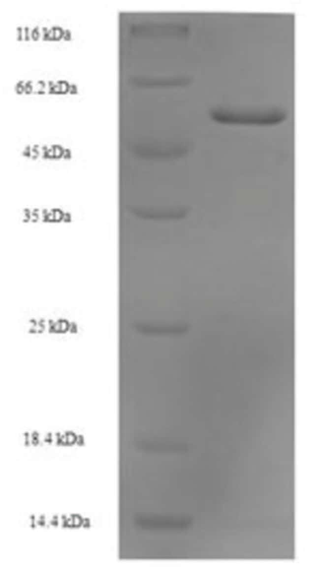 enQuireBio™ Recombinant Human Septin-2 Protein 1mg enQuireBio™ Recombinant Human Septin-2 Protein