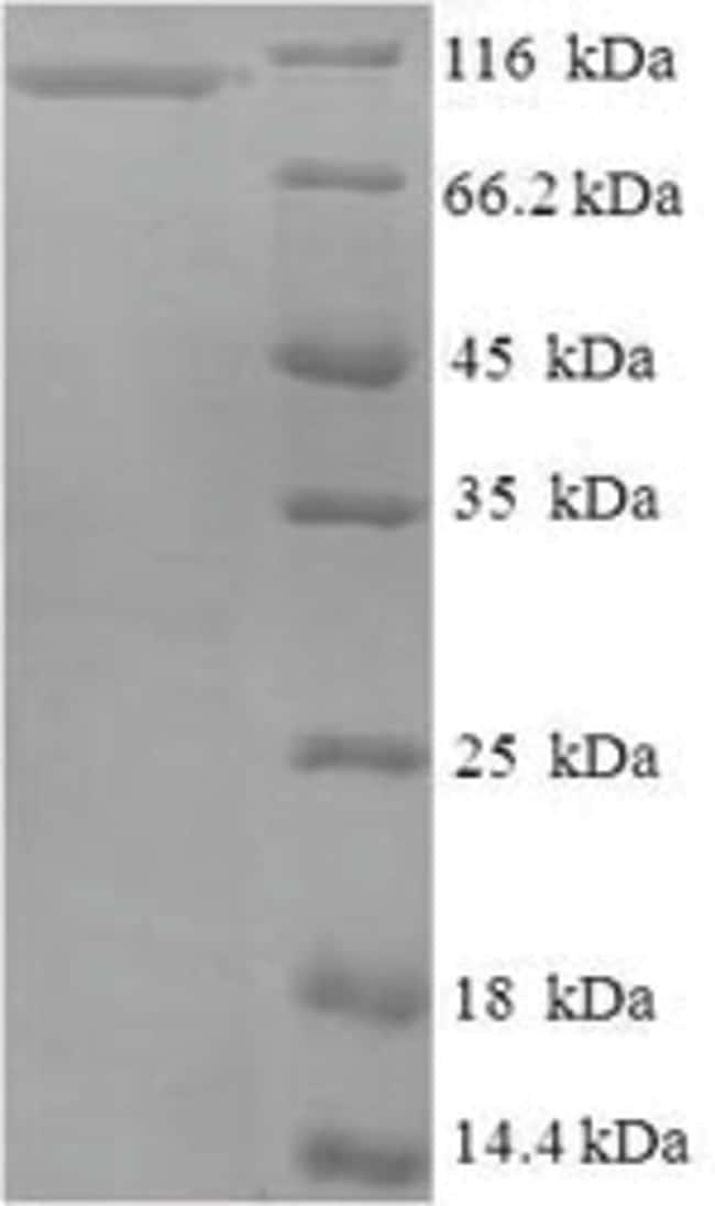 enQuireBio™Recombinant Human Nucleolar GTP-binding protein 1 100μg enQuireBio™Recombinant Human Nucleolar GTP-binding protein 1