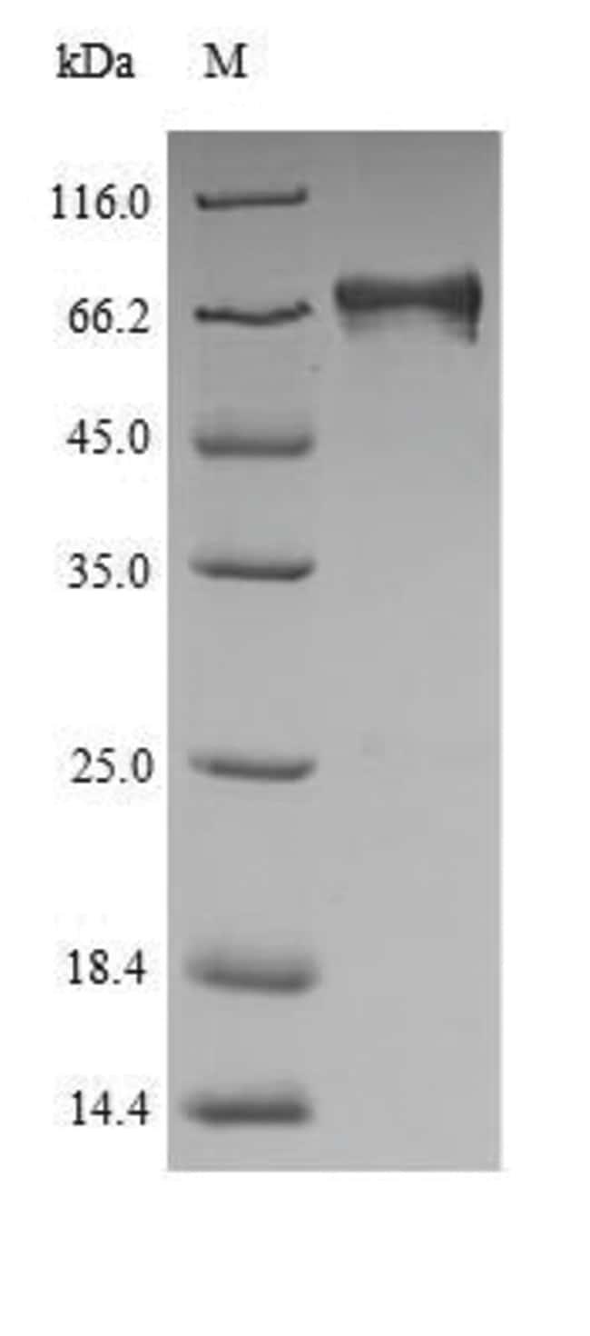 enQuireBio™Recombinant Human ETFDH Protein 100μg enQuireBio™Recombinant Human ETFDH Protein