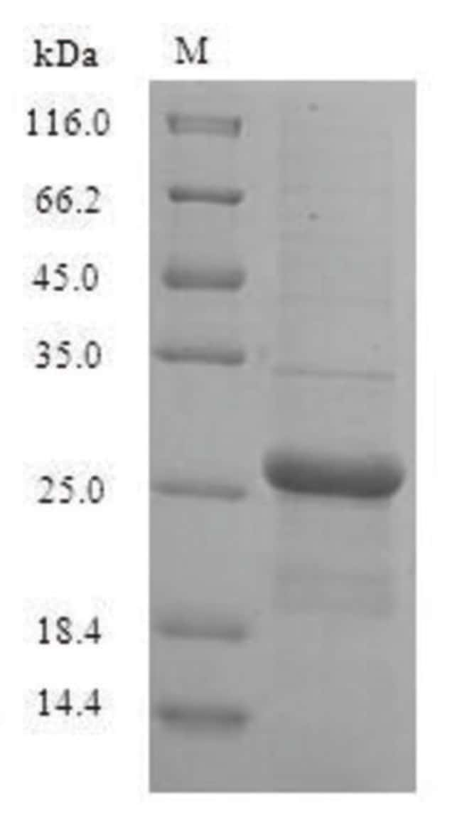 enQuireBio™ Recombinant Human Guanylate kinase Protein 200μg enQuireBio™ Recombinant Human Guanylate kinase Protein
