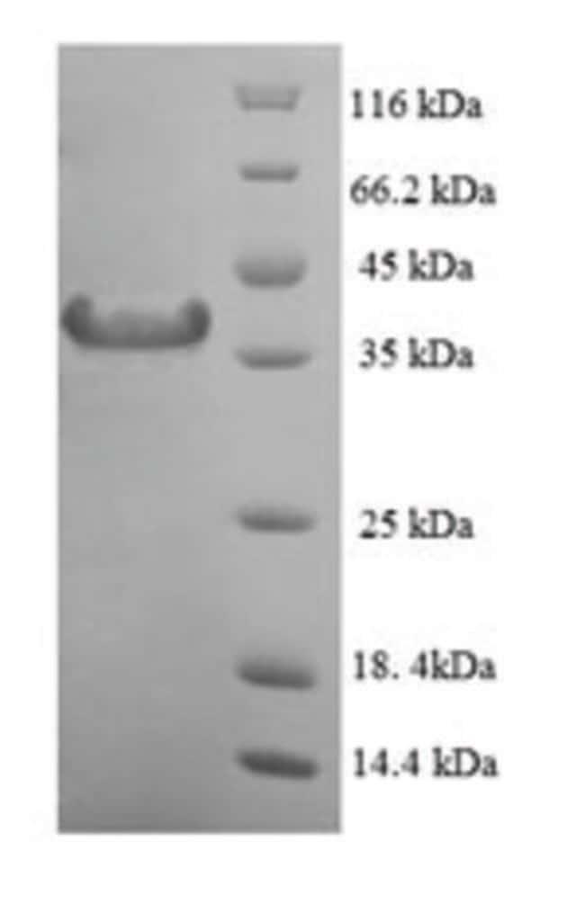 enQuireBio™Recombinant Human MAD2L1 / MAD2 Protein 10μg enQuireBio™Recombinant Human MAD2L1 / MAD2 Protein