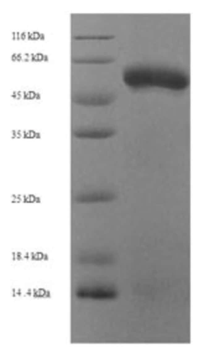 enQuireBio™ Recombinant Human Fibroleukin Protein: Proteins A-Z Proteins