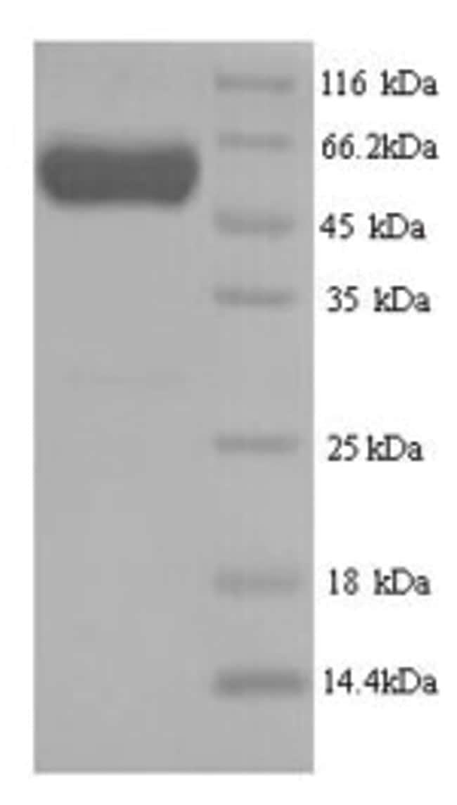 enQuireBio™Recombinant Human Septin-7 Protein 500μg enQuireBio™Recombinant Human Septin-7 Protein