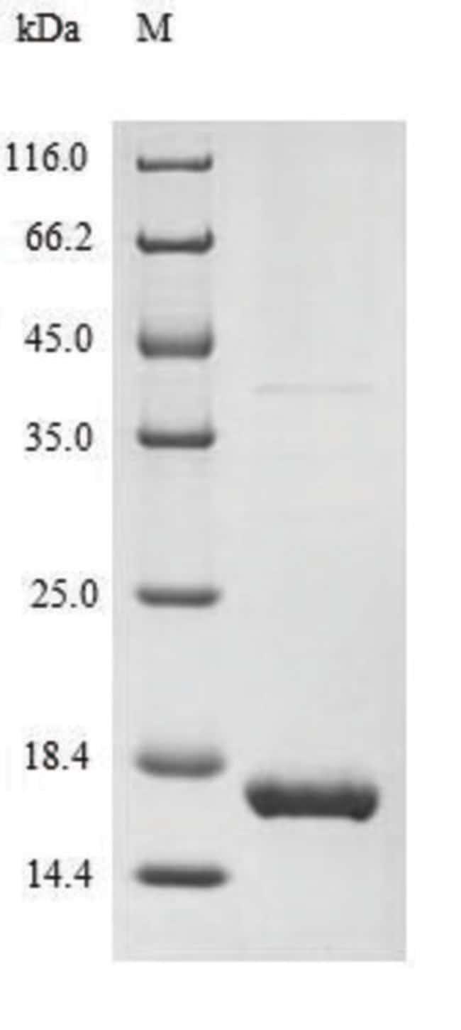 enQuireBio™Recombinant Human MART-1 / MLANA Protein 100μg enQuireBio™Recombinant Human MART-1 / MLANA Protein