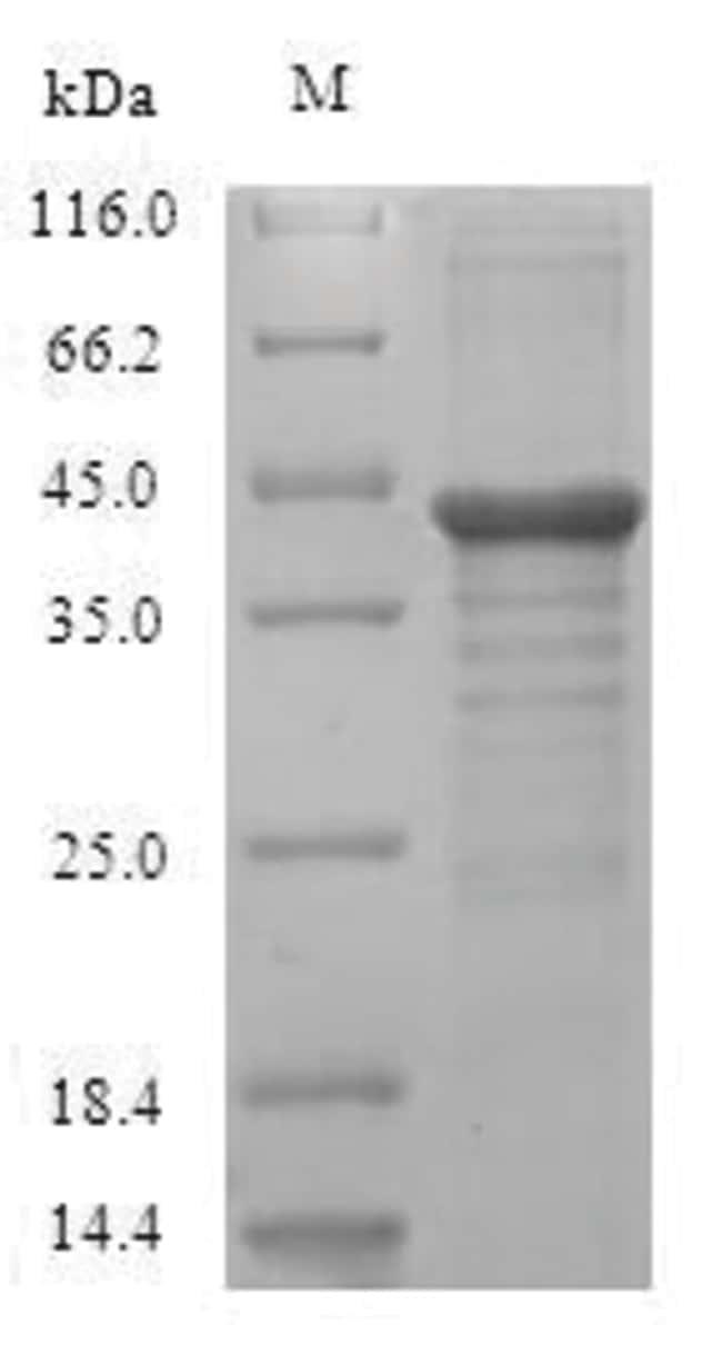 enQuireBio™Recombinant Human Protein unc-119 homolog A Protein 1mg enQuireBio™Recombinant Human Protein unc-119 homolog A Protein