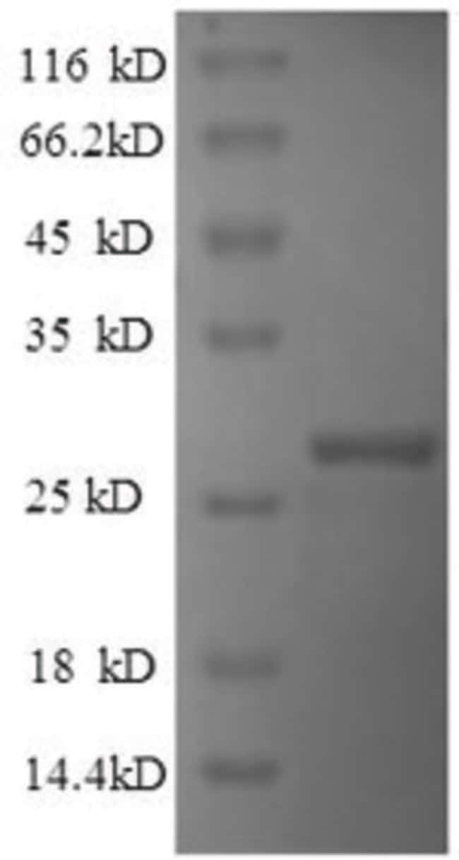 enQuireBio™Recombinant Human IHH Protein 200μg enQuireBio™Recombinant Human IHH Protein