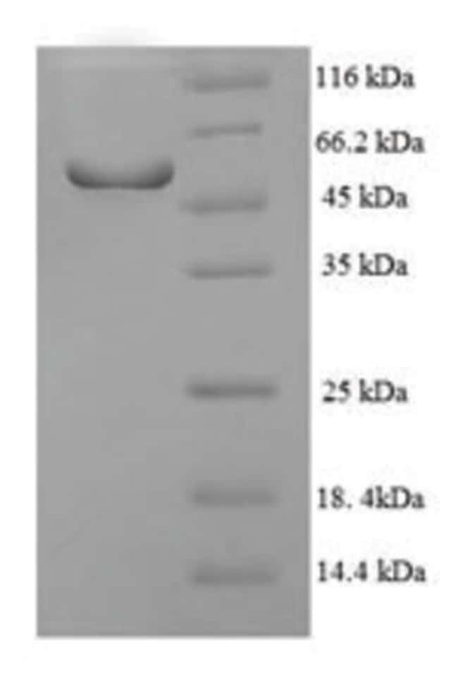 enQuireBio™ Recombinant Human NR1I3 Protein 10μg enQuireBio™ Recombinant Human NR1I3 Protein