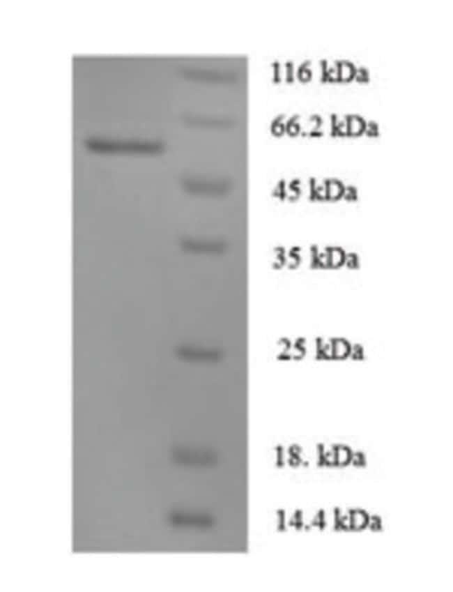 enQuireBio™Recombinant Human Angiopoietin 1 / ANG1 / ANGPT1 Protein 1mg enQuireBio™Recombinant Human Angiopoietin 1 / ANG1 / ANGPT1 Protein