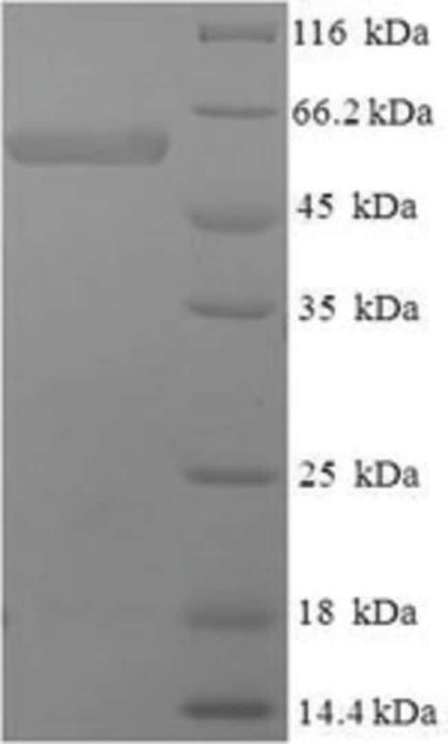 enQuireBio™Recombinant Human SMARCB1 Protein 100μg enQuireBio™Recombinant Human SMARCB1 Protein