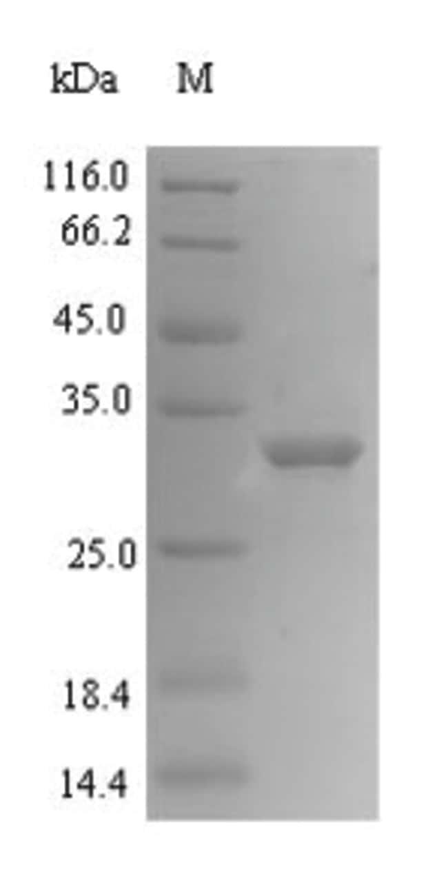 enQuireBio™Recombinant Human Mediator of DNA damage checkpoint protein 1 10μg enQuireBio™Recombinant Human Mediator of DNA damage checkpoint protein 1