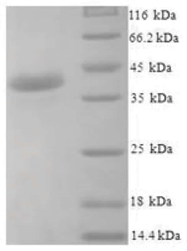 enQuireBio™Recombinant Human Josephin-1 Protein 10μg enQuireBio™Recombinant Human Josephin-1 Protein