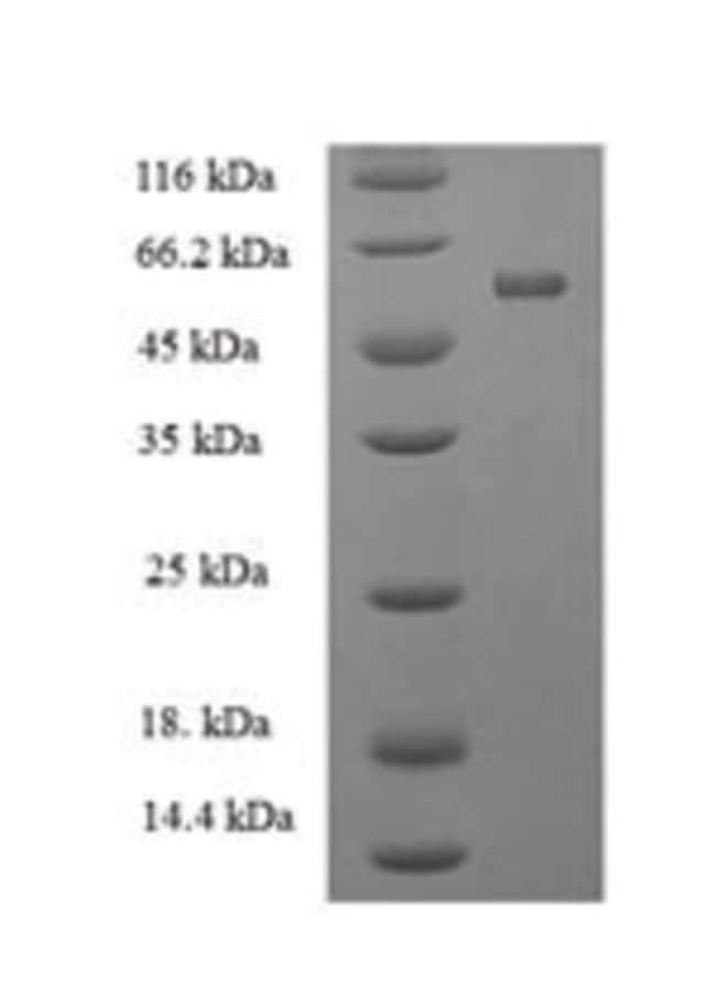 enQuireBio™Recombinant Human PTPRR Protein 100μg enQuireBio™Recombinant Human PTPRR Protein