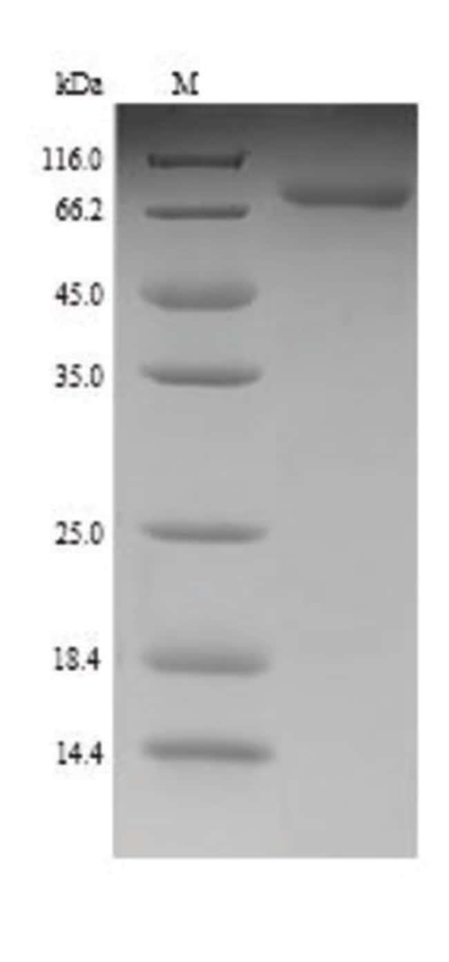 enQuireBio™Recombinant E. coli Chaperone protein DnaK Protein 50μg enQuireBio™Recombinant E. coli Chaperone protein DnaK Protein