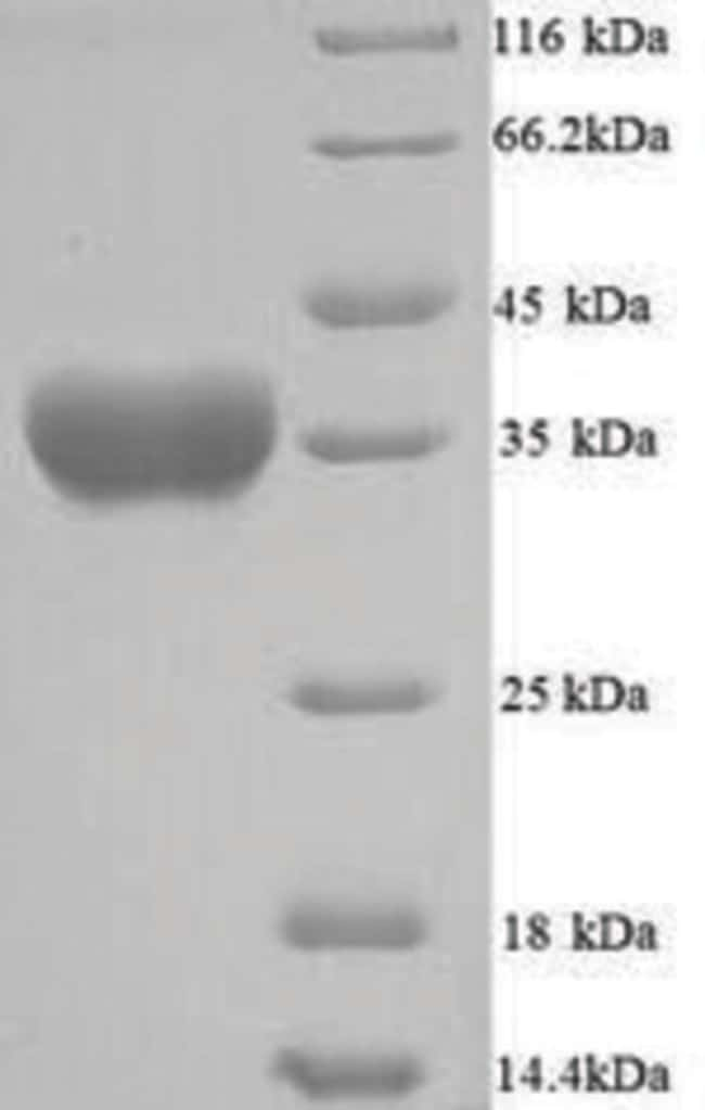 enQuireBio™ Recombinant S. aureus Alpha-hemolysin Protein 100μg enQuireBio™ Recombinant S. aureus Alpha-hemolysin Protein