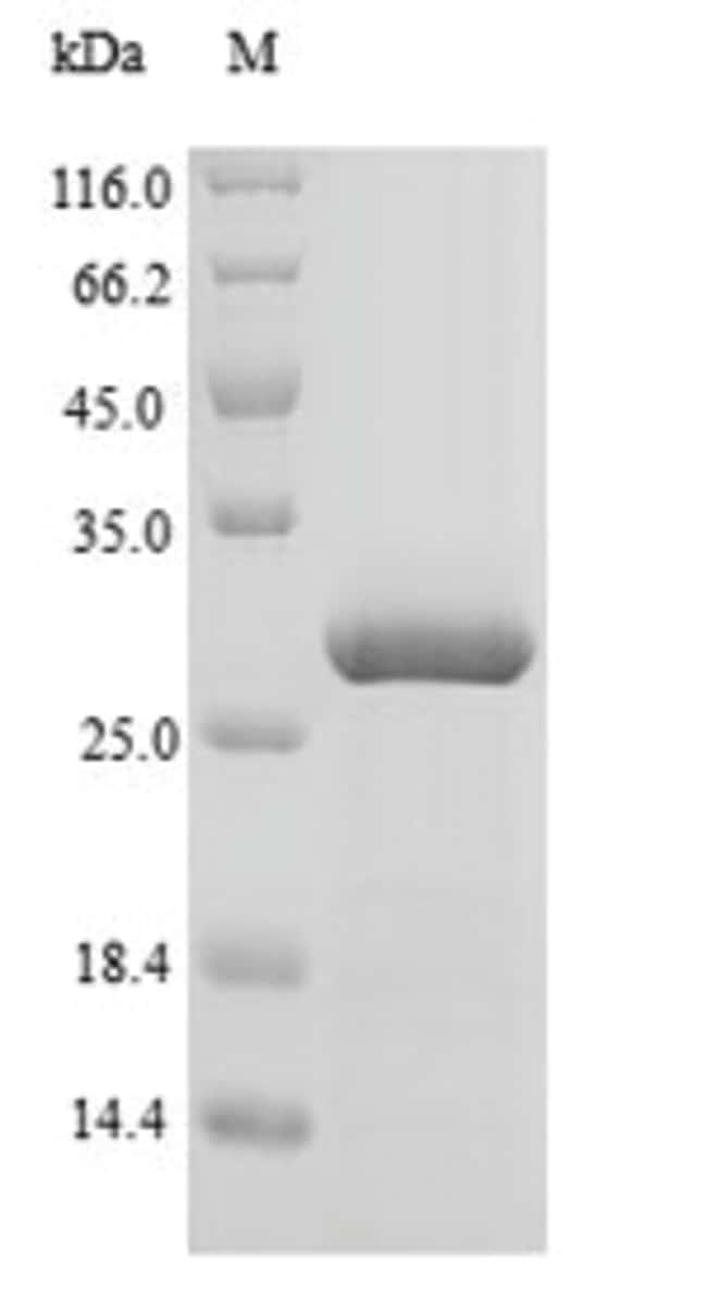 enQuireBio™Recombinant Bovine Agouti-signaling Protein 500μg enQuireBio™Recombinant Bovine Agouti-signaling Protein