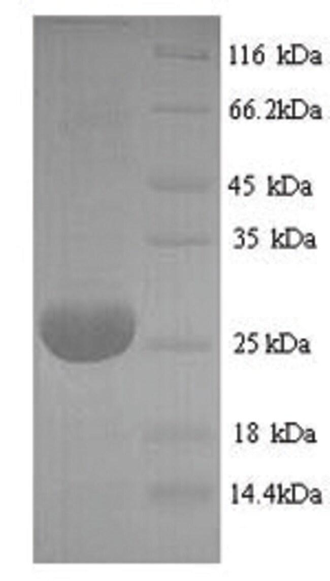 enQuireBio™Recombinant Bovine Adiponectin / Acrp30 / ADIPOQ Protein 10μg enQuireBio™Recombinant Bovine Adiponectin / Acrp30 / ADIPOQ Protein
