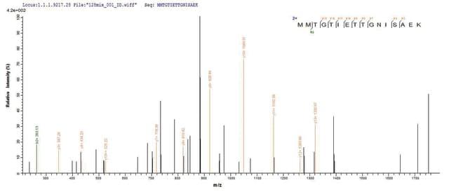 enQuireBio™Recombinant Human TIGIT / VSTM3 Protein 200μg enQuireBio™Recombinant Human TIGIT / VSTM3 Protein