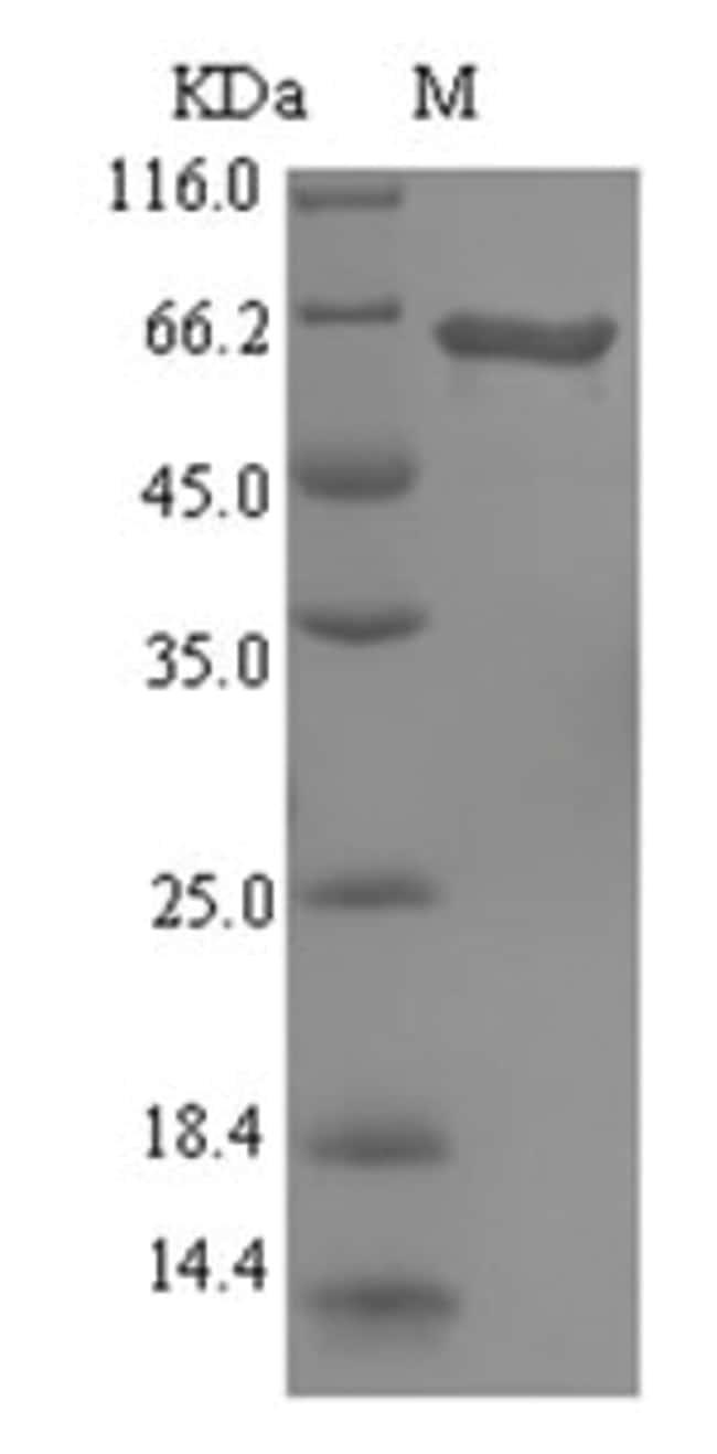 enQuireBio™Recombinant P. aeruginosa L-ornithine N(5)-monooxygenase Protein 100μg enQuireBio™Recombinant P. aeruginosa L-ornithine N(5)-monooxygenase Protein