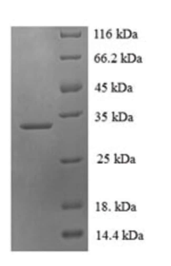 enQuireBio™Recombinant Human PDZD11 / PDZK11 / PISP Protein 500μg enQuireBio™Recombinant Human PDZD11 / PDZK11 / PISP Protein