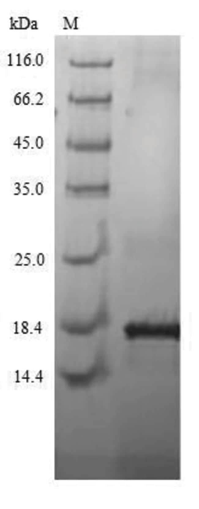 enQuireBio™Recombinant Human Kita-kyushu lung cancer antigen 1 Protein 200μg enQuireBio™Recombinant Human Kita-kyushu lung cancer antigen 1 Protein