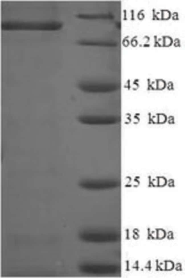 enQuireBio™Recombinant Rat Caprin-1 Protein 50μg enQuireBio™Recombinant Rat Caprin-1 Protein