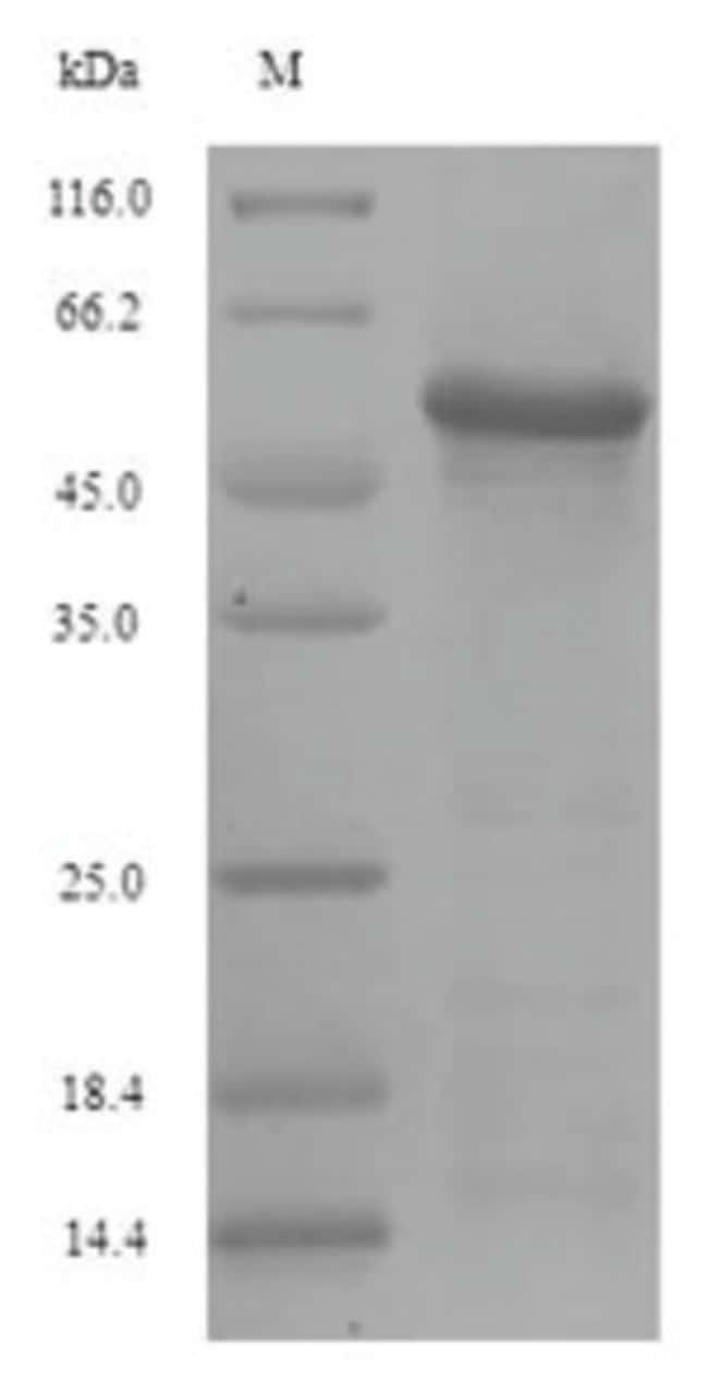 enQuireBio™Recombinant Influenza A H2N2 (Korea / 426 / 1968) Hemagglutinin Protein 100μg enQuireBio™Recombinant Influenza A H2N2 (Korea / 426 / 1968) Hemagglutinin Protein