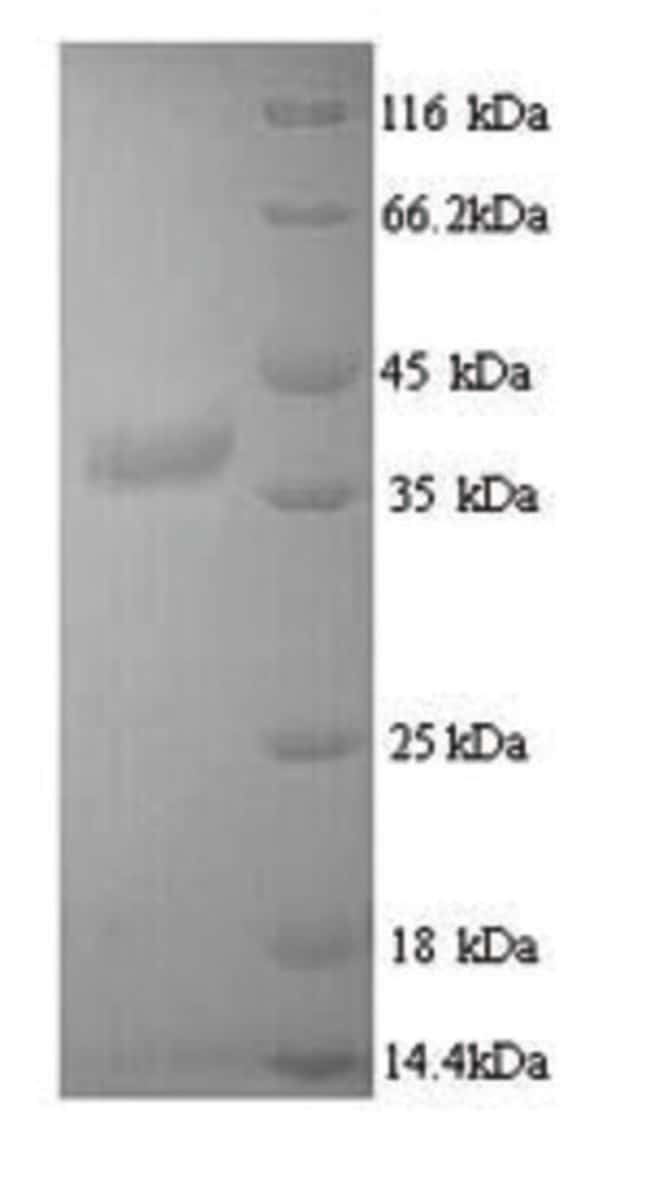 enQuireBio™Recombinant Mouse Tyrosine-protein kinase JAK3 Protein 100μg enQuireBio™Recombinant Mouse Tyrosine-protein kinase JAK3 Protein