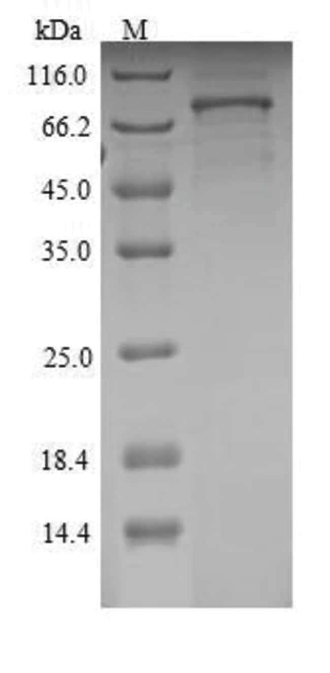 enQuireBio™Recombinant Rat Semaphorin 3A / SEMA3A Protein 1mg enQuireBio™Recombinant Rat Semaphorin 3A / SEMA3A Protein