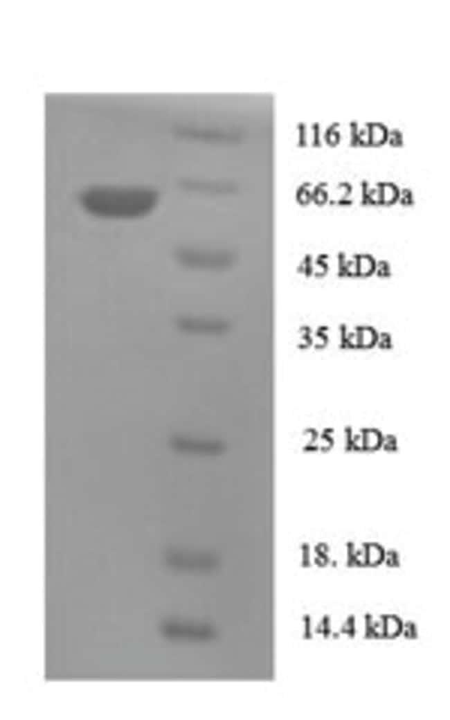 enQuireBio™Recombinant Human TBCEL Protein 100μg enQuireBio™Recombinant Human TBCEL Protein