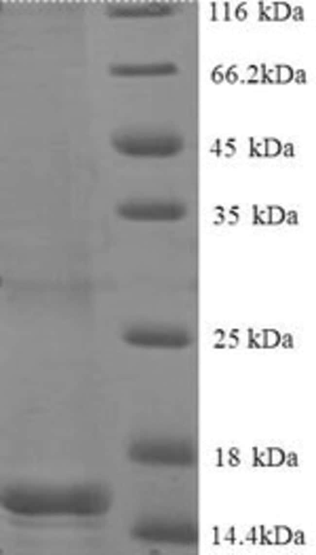 enQuireBio™Recombinant Human BEN domain-containing protein 1 200μg enQuireBio™Recombinant Human BEN domain-containing protein 1