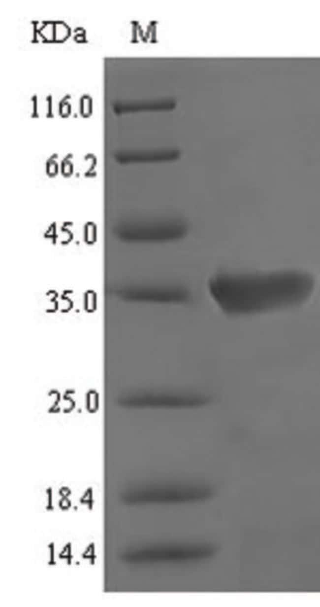 enQuireBio™Recombinant Mouse Vomeronasal secretory protein 1 200μg enQuireBio™Recombinant Mouse Vomeronasal secretory protein 1