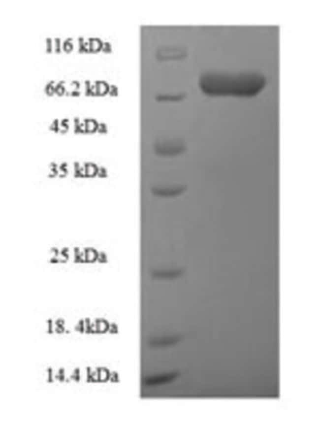 enQuireBio™ Recombinant Human Autophagy-related protein 16-1 Protein 200μg enQuireBio™ Recombinant Human Autophagy-related protein 16-1 Protein