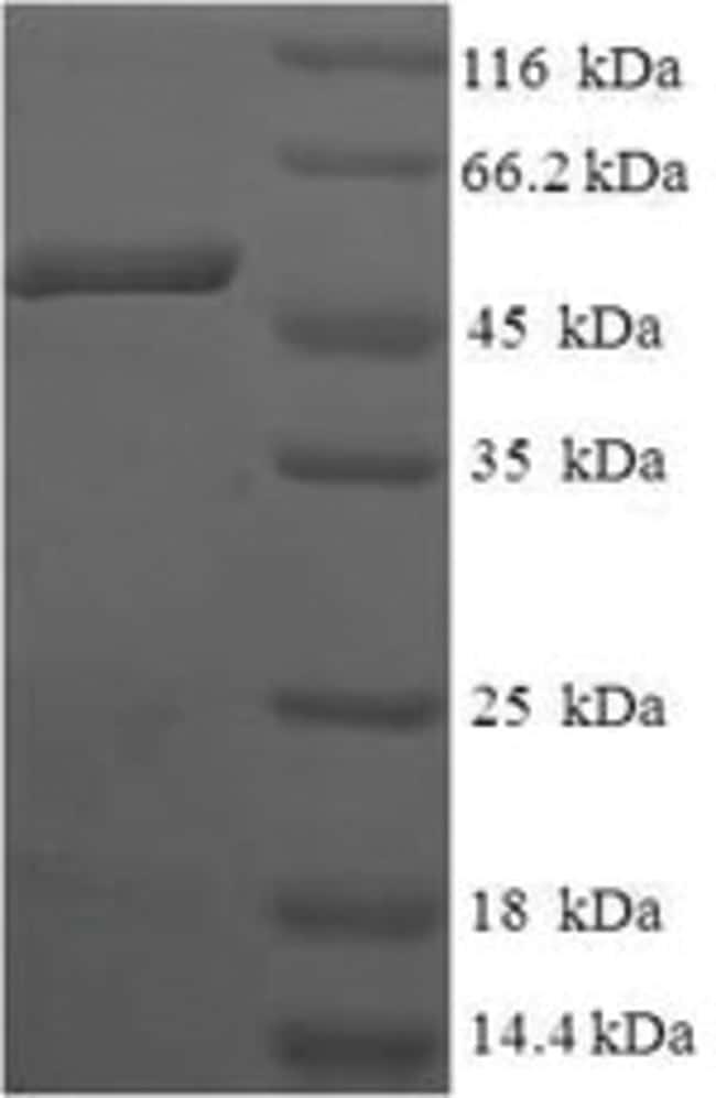 enQuireBio™Recombinant Human Anamorsin Protein 50μg enQuireBio™Recombinant Human Anamorsin Protein