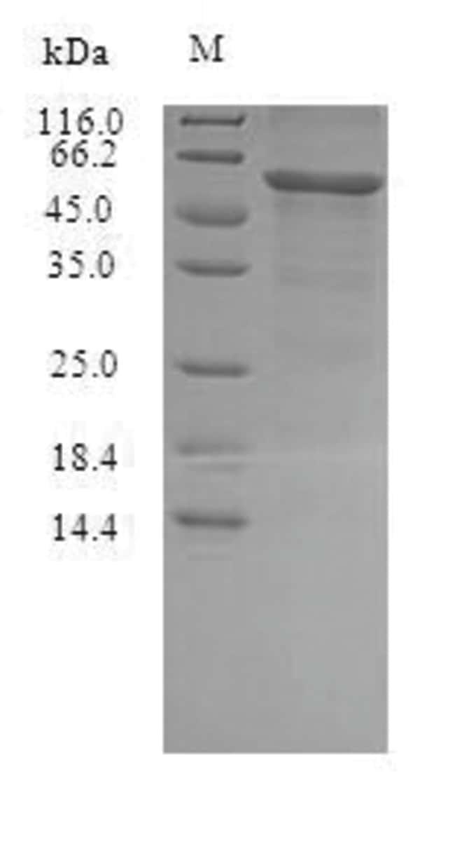enQuireBio™Recombinant S. aureus Gamma-hemolysin component C Protein 100μg enQuireBio™Recombinant S. aureus Gamma-hemolysin component C Protein