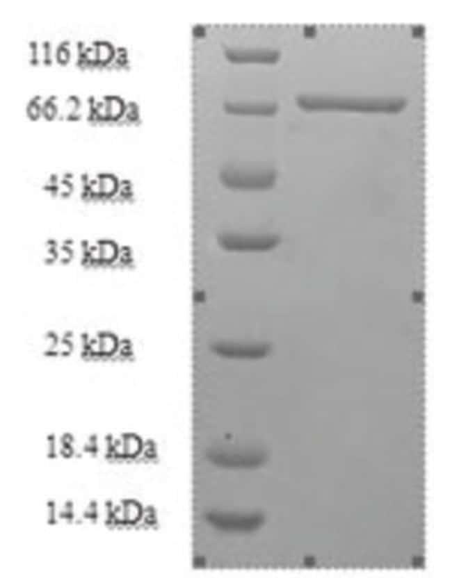 enQuireBio™Recombinant Human Kynurenine--oxoglutarate transaminase 3 Protein 1mg enQuireBio™Recombinant Human Kynurenine--oxoglutarate transaminase 3 Protein