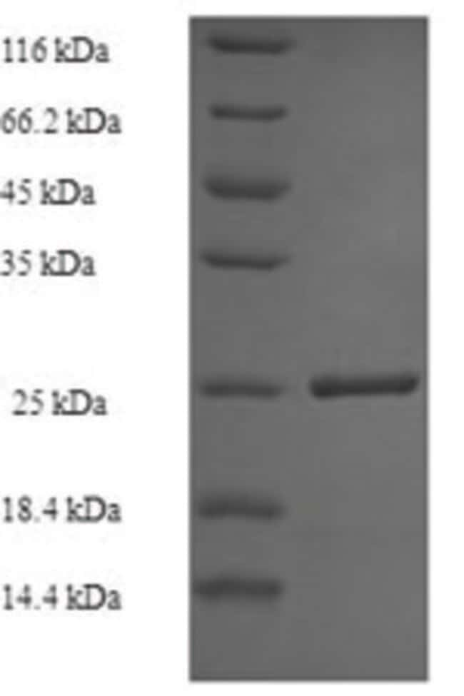 enQuireBio™Recombinant Human Vasohibin-1 Protein 500μg enQuireBio™Recombinant Human Vasohibin-1 Protein
