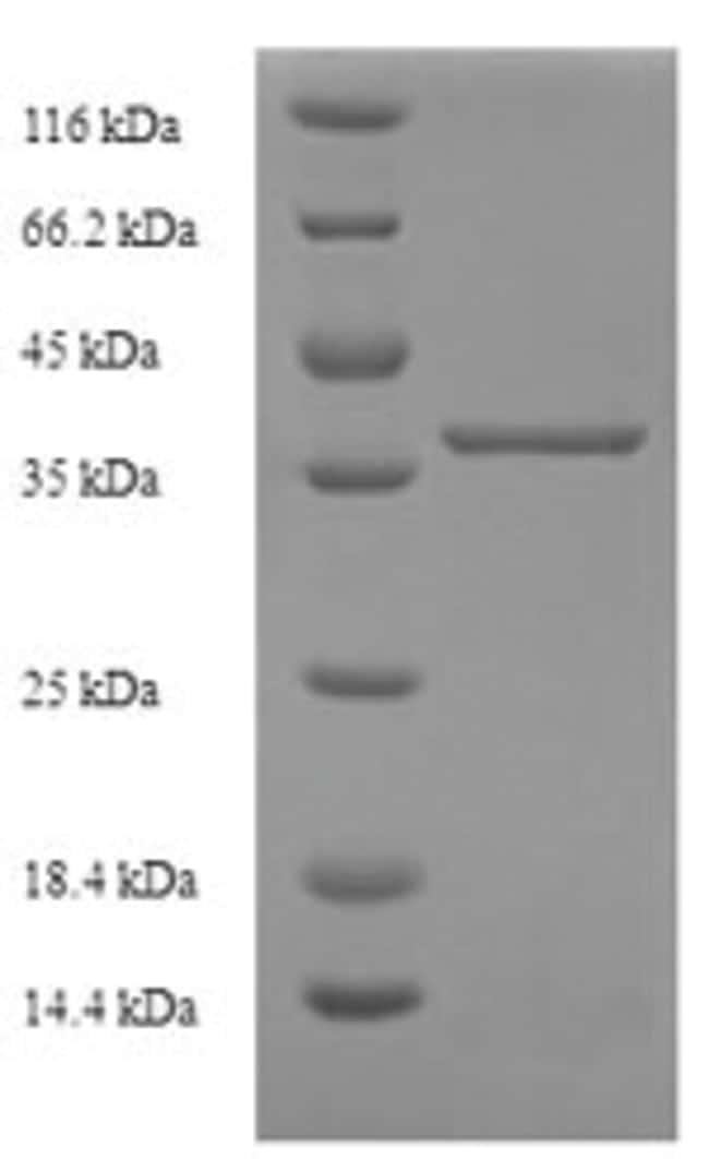 enQuireBio™Recombinant Human Lysozyme-like protein 1 1mg enQuireBio™Recombinant Human Lysozyme-like protein 1