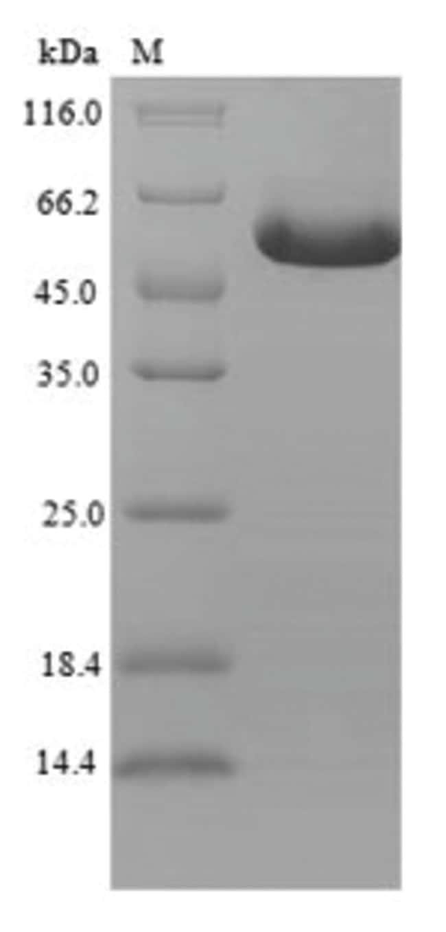 enQuireBio™Recombinant Human GDNF family receptor alpha-like Protein 500μg enQuireBio™Recombinant Human GDNF family receptor alpha-like Protein
