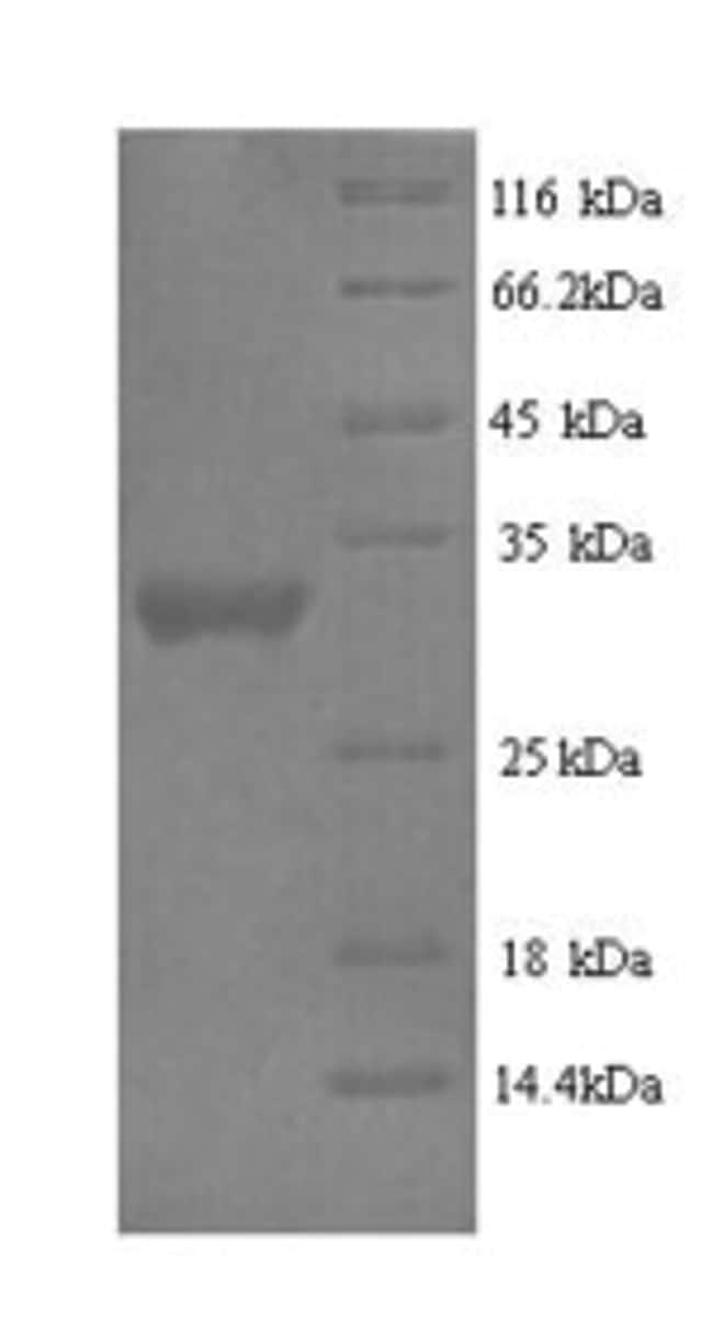 enQuireBio™Recombinant Human Protein delta homolog 2 Protein 10μg enQuireBio™Recombinant Human Protein delta homolog 2 Protein