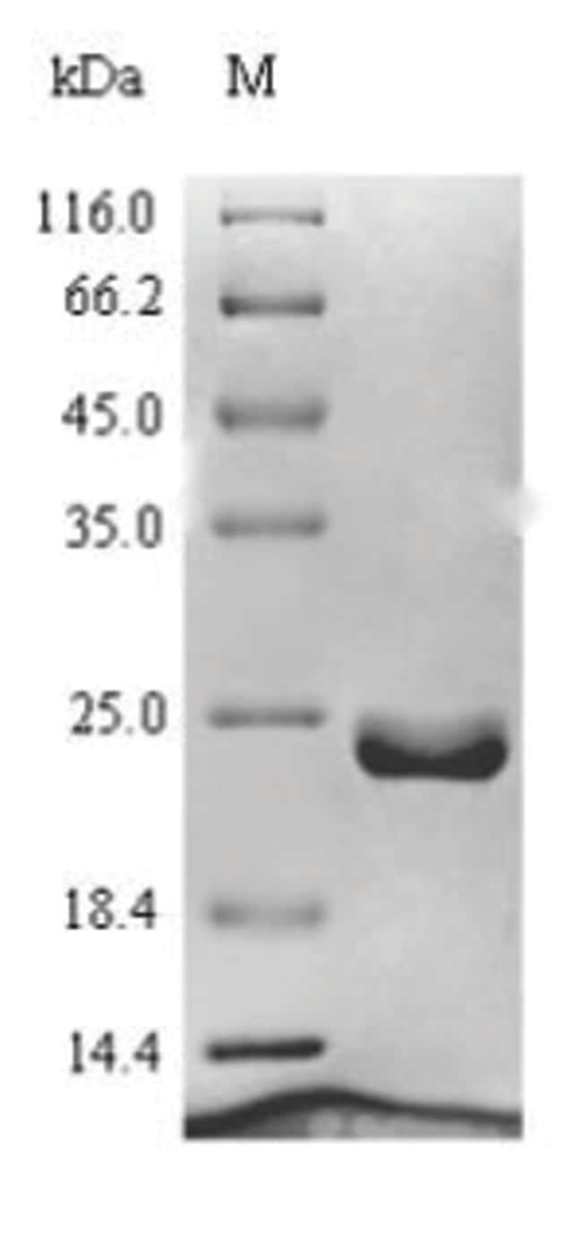 enQuireBio™Recombinant Human Ragulator complex protein LAMTOR1 Protein 50μg enQuireBio™Recombinant Human Ragulator complex protein LAMTOR1 Protein